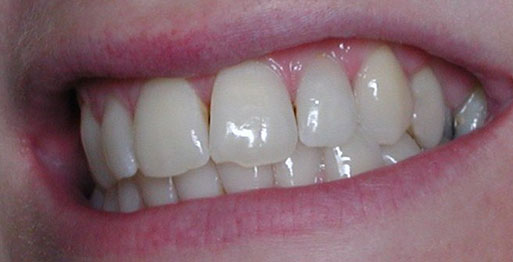 After Internal Bleaching - Case 2