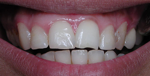 After Internal Bleaching - Case 3