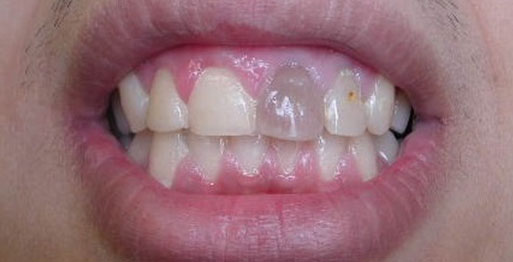 Before Internal Bleaching - Case 1
