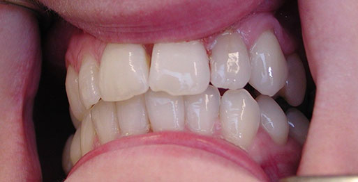 Before Internal Bleaching - Case 2