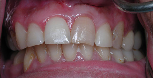 Before Internal Bleaching - Case 3
