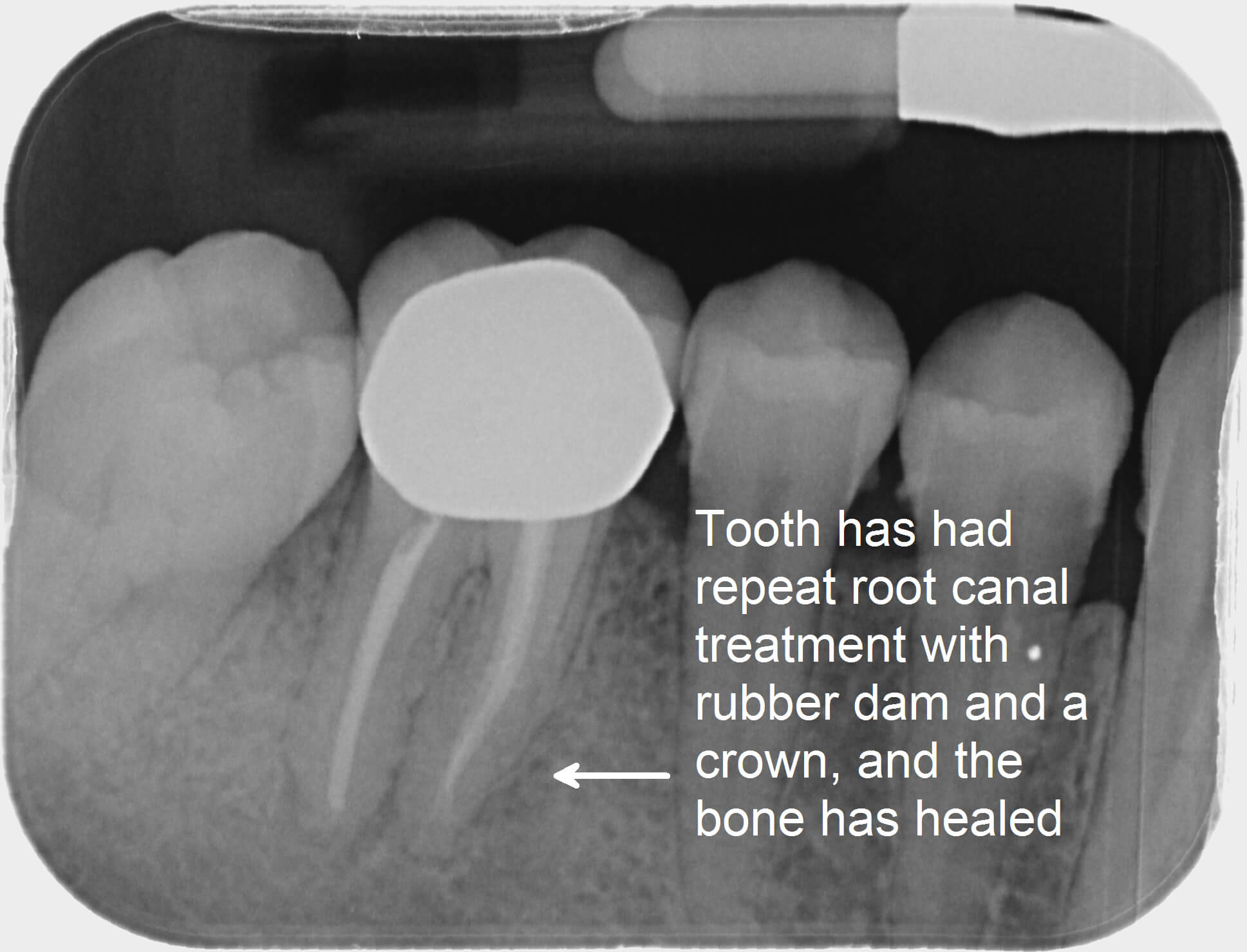 Repeated Root Canal Treatment with Rubber Dam and a Crown